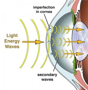 Standard Laser Vision Treatment